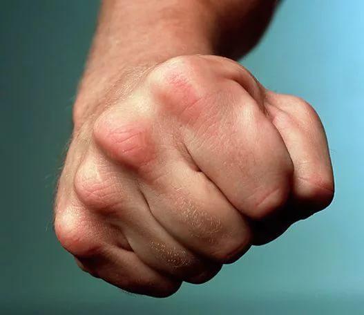Пациенты кулаками увечат 200 российских врачей в год