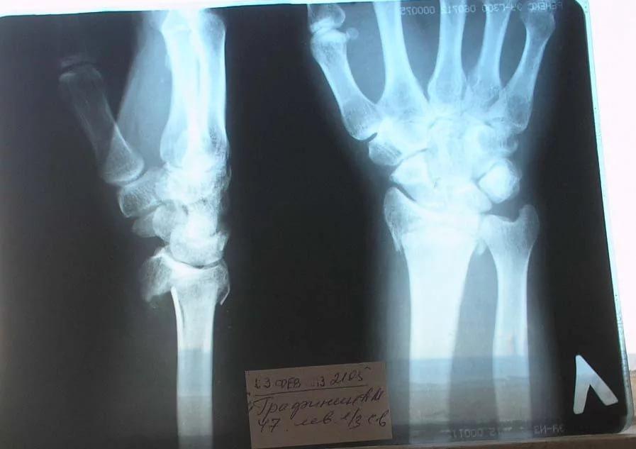 В Рязани пациентка судилась с собственной физиологией
