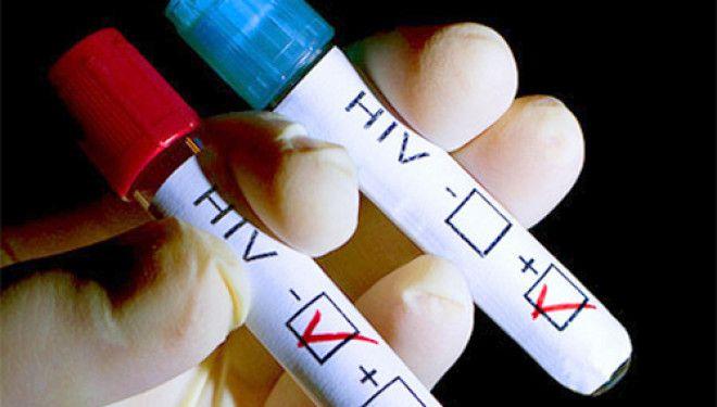 В России сократилось число новых случаев ВИЧ