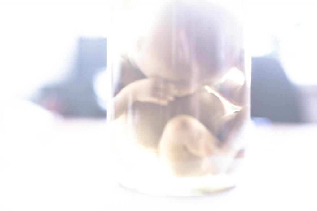 «Гаврюша» — эмбрион в формалине — в гинекологическом отделении Гаврилов-Ямской ЦРБ, 21 апреля 2017 года Фото: Анна Иванцова
