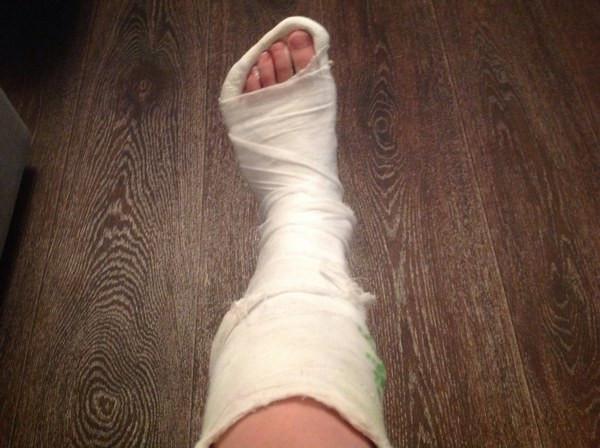 """Прокуратура """"трясёт"""" больницу за то, что на её территории подростки поломали себе ноги"""