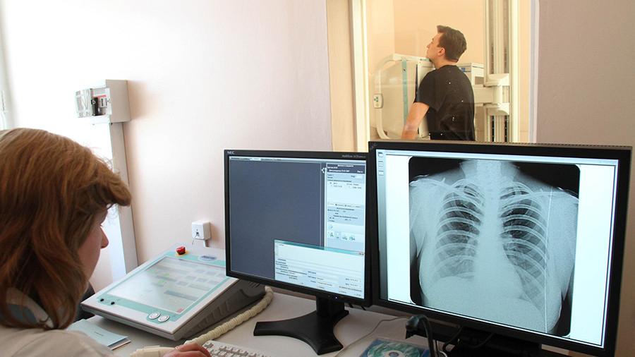 Минздрав планирует излечить туберкулез в России к 2030 году
