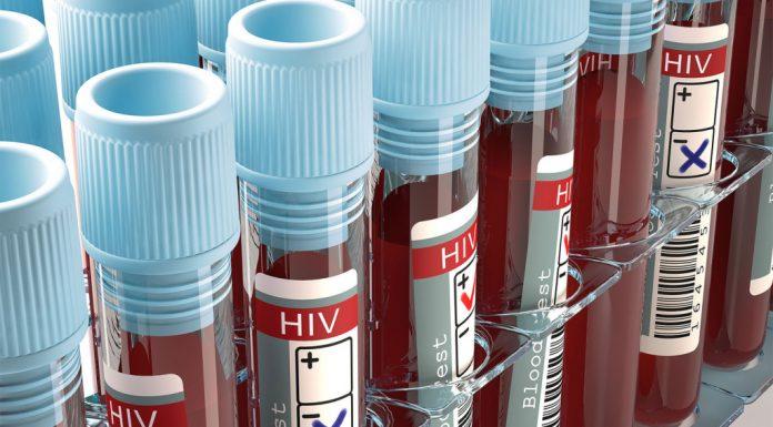ВИЧ-инфицированным не хватает врачей