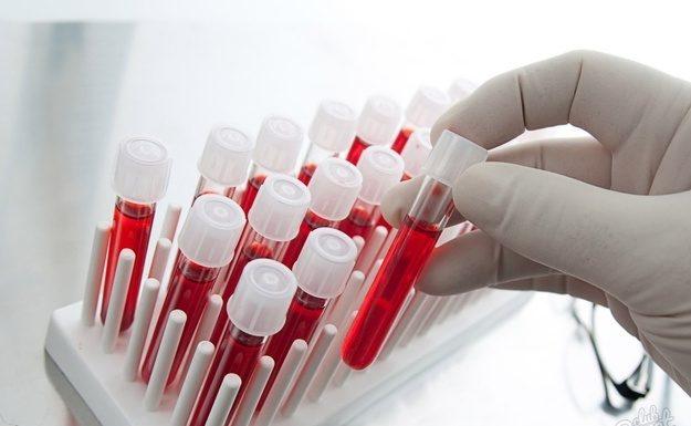 Беременная тюменка скрыла диагноз ВИЧ от врачей и обрекла детей на мучения