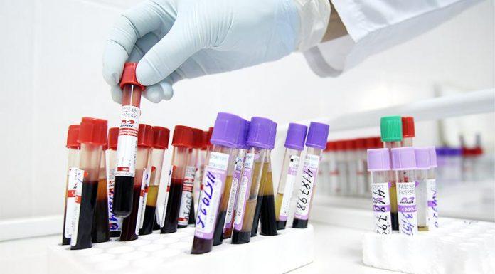 На лекарства для ВИЧ-инфицированных в 2018 году выделят на 20% средств больше