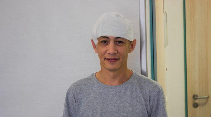 В Новосибирске врачи избавили пациента от огромной мальформации в тканях головы