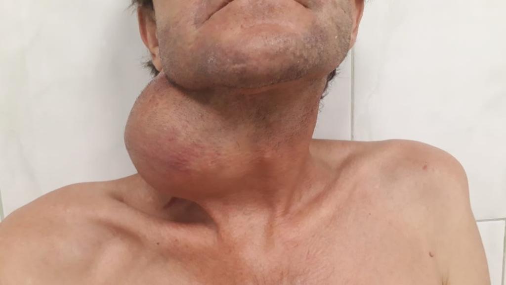 Кубанские врачи удалили пациенту гигантскую опухоль с шеи