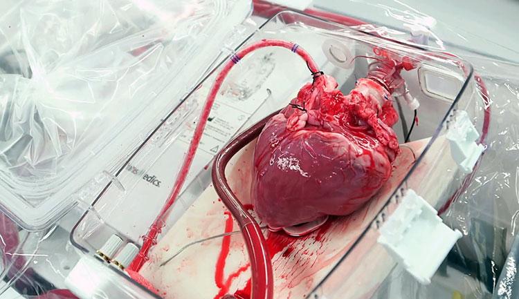 В России научились хранить донорское сердце в течение 24 часов