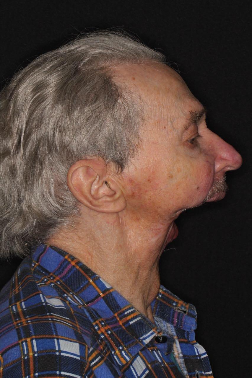 Людей, утративших носы, щёки, ушные раковины в результате онкологии, ожогов, травм – тысячи. Челюстно-лицевой хирург Давид Назарян и ортопед-анапластолог Артавазд Харазян рассказали РИА Новости о том, как восстанавливают внешность людям «без лица». Например, у Анатолия половина лица сделана из силикона: глаз с глазницей и верхняя челюсть легко вынимаются и вместо них на лице остаётся большая дыра, приобретённая во время лечения рака кожи.