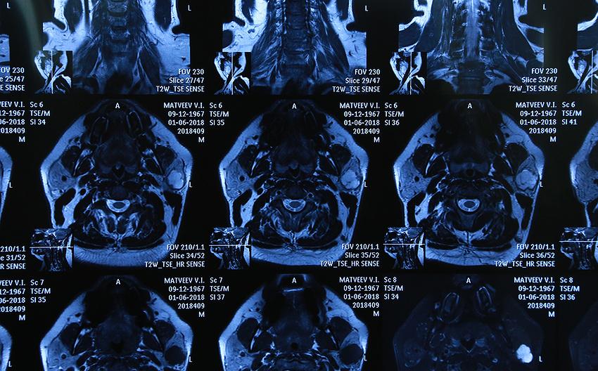 В медцентре Дальневосточного федерального университета (ДВФУ) впервые в Приморском крае применили специальную методику при операциях на лице, передаёт dv.land. Больной может разучиться улыбаться, поднимать брови, жмуриться. Новый способ помогает хирургу точно определить границы нервов, чтобы их не задеть.
