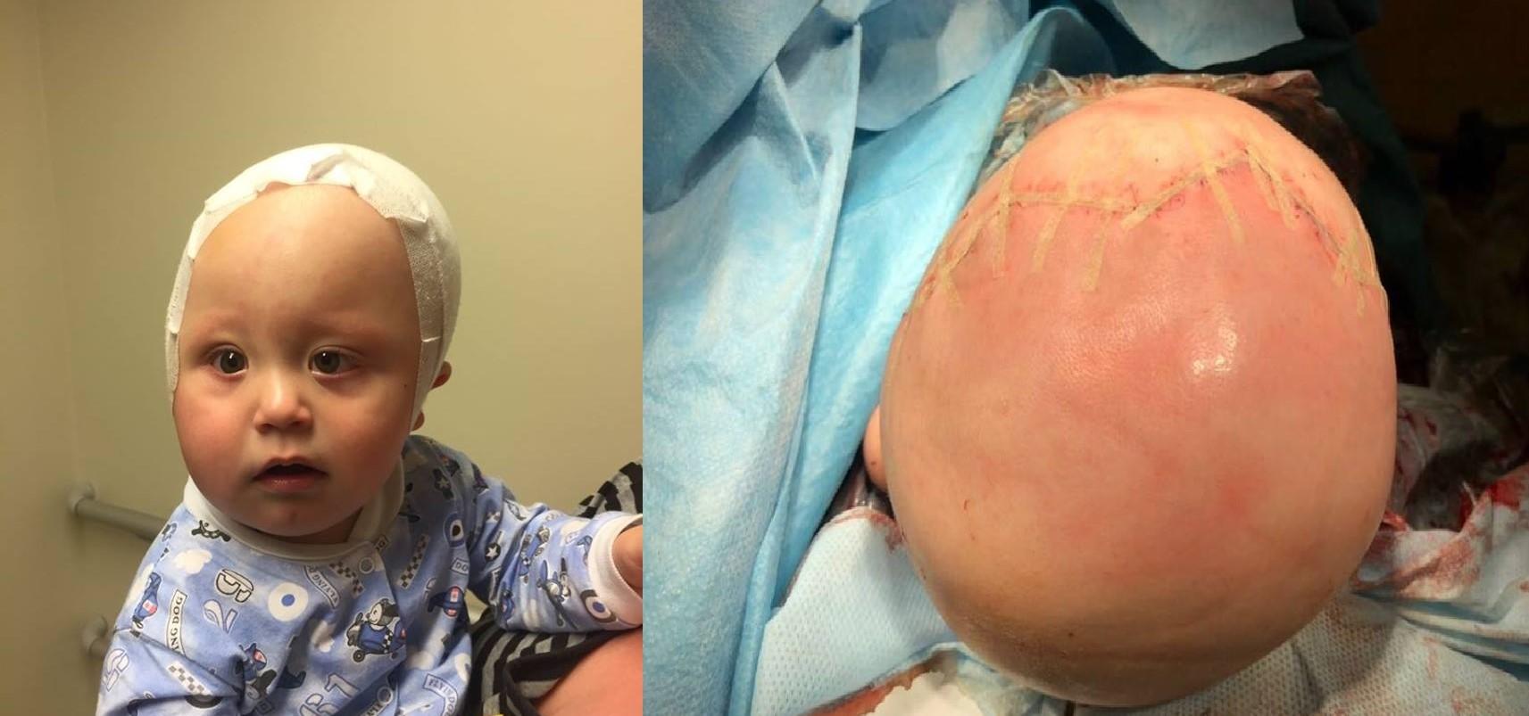 Врачи Морозовской детской больницы в Москве провели уникальную операцию годовалому ребёнку и устранили у него редкую патологию развития черепа. Об этом на странице «Врачи Москвы» в Facebook сообщилглавврач Морозовской ДКБ Игорь Колтунов.