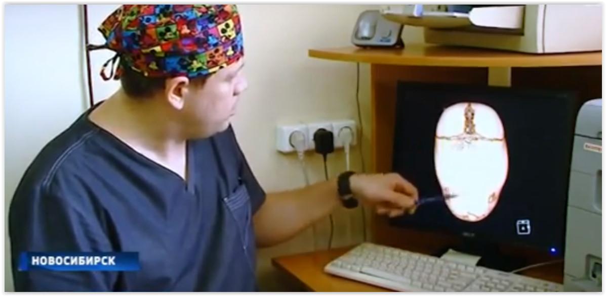 Новосибирские врачи прооперировали младенца с грубой деформацией черепа