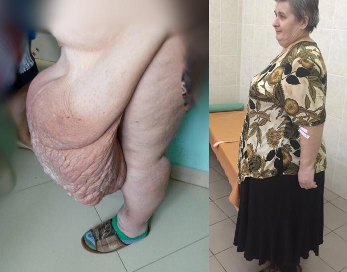 Живот пациентки до и после операции