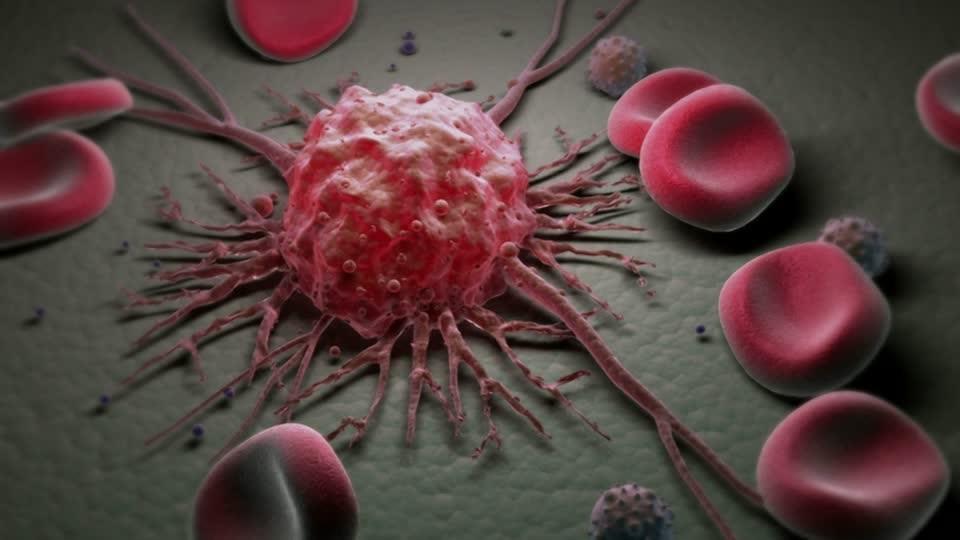 Лечение содой и заражение от Wi-Fi: СПИД.Центр – о мифах онкологии