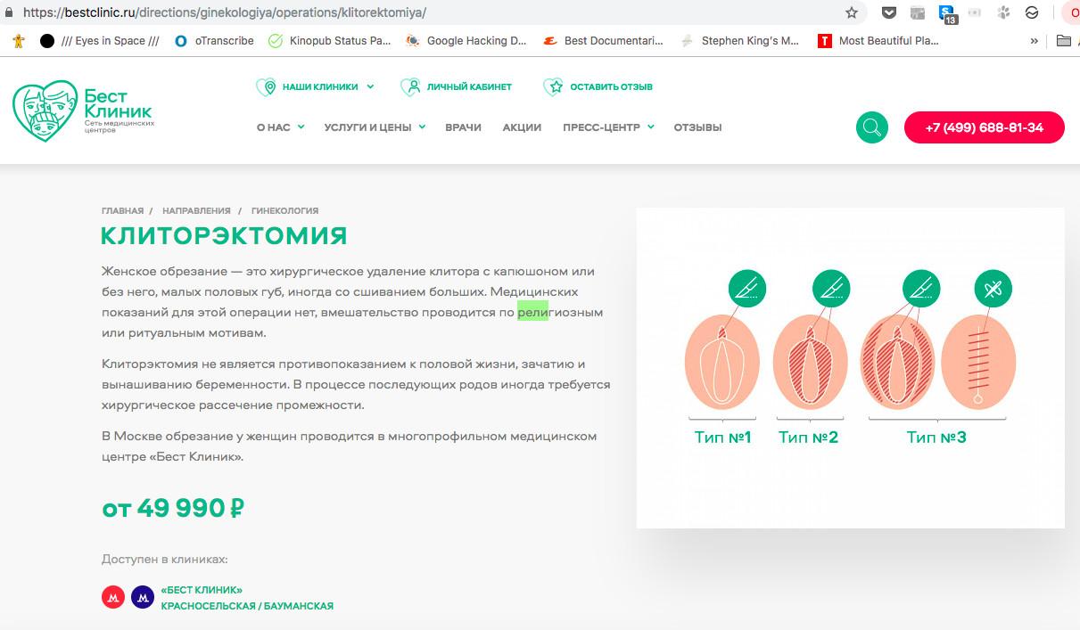 Московская клиника предлагала «женское обрезание» - калечащую процедуру по религиозным мотивам