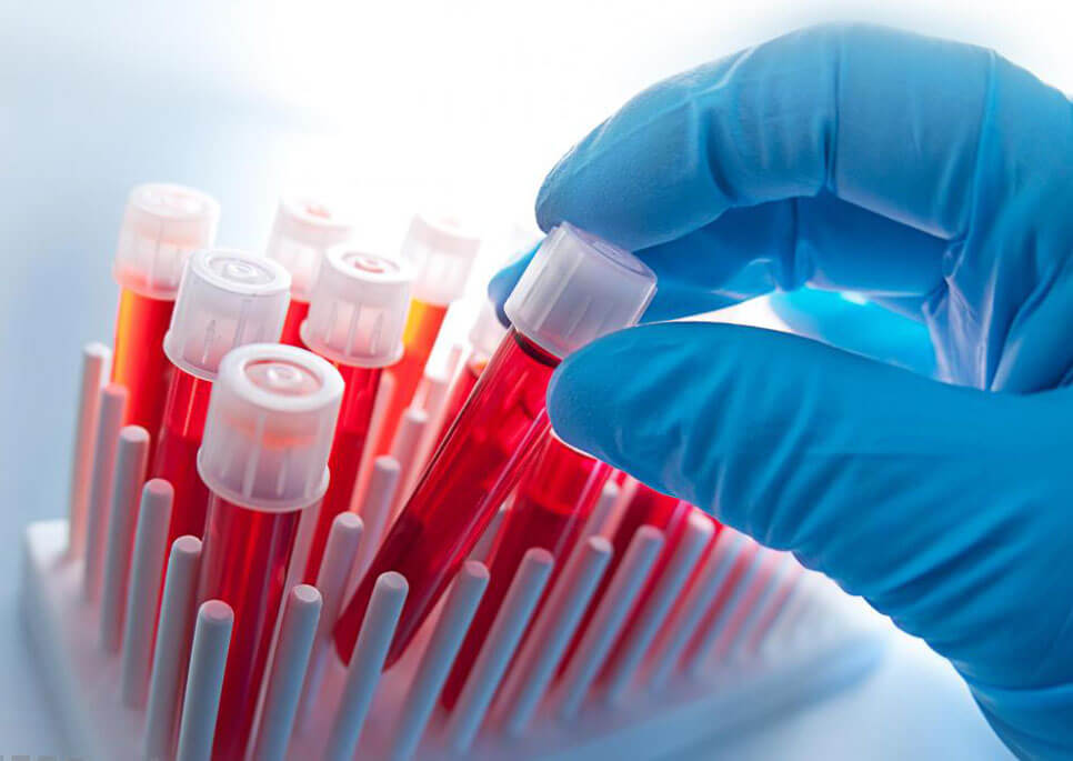 В России разработали способ диагностики рака по одной капли крови