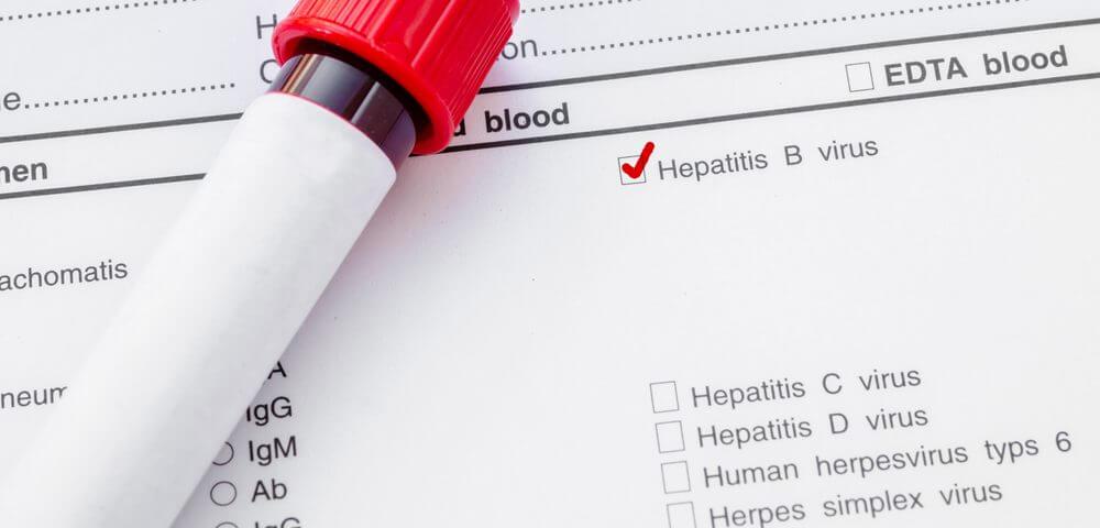 «Лекарства от гепатита не включены в ЖНВЛП, а оплатить их самостоятельно пациенты не могут»