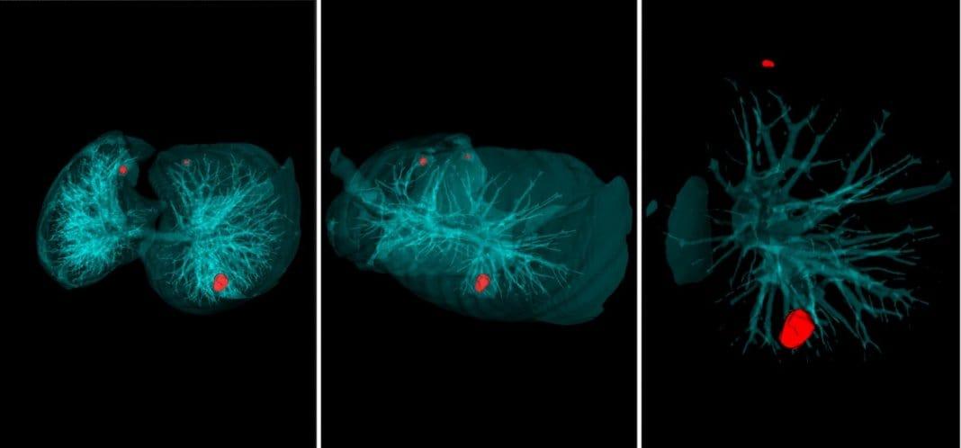 Российские учёные создали программу для распознавания рака лёгких за 20 секунд