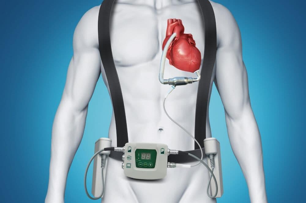 В Центре Алмазова пациенту впервые вживили «искусственное» сердце