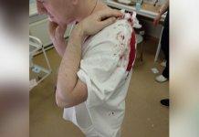 Челябинский СК расследует дело пациента, напавшего с пинцетом на врача