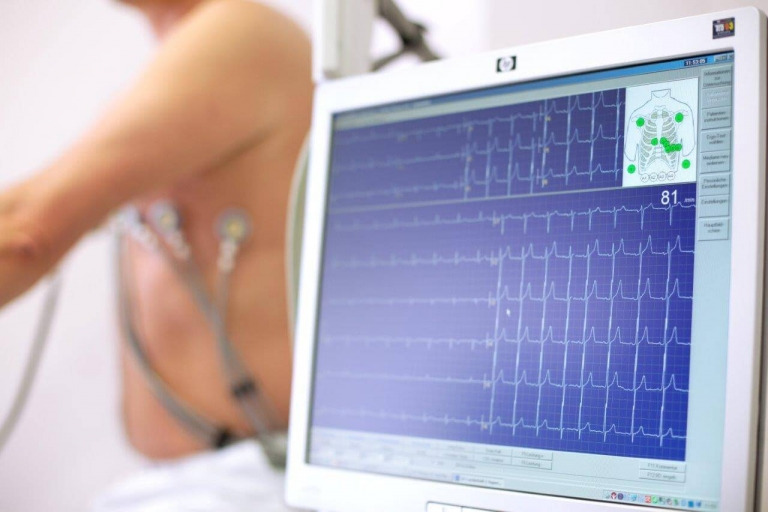 Новосибирские учёные разработали экспресс-тест для выявления острого инфаркта миокарда