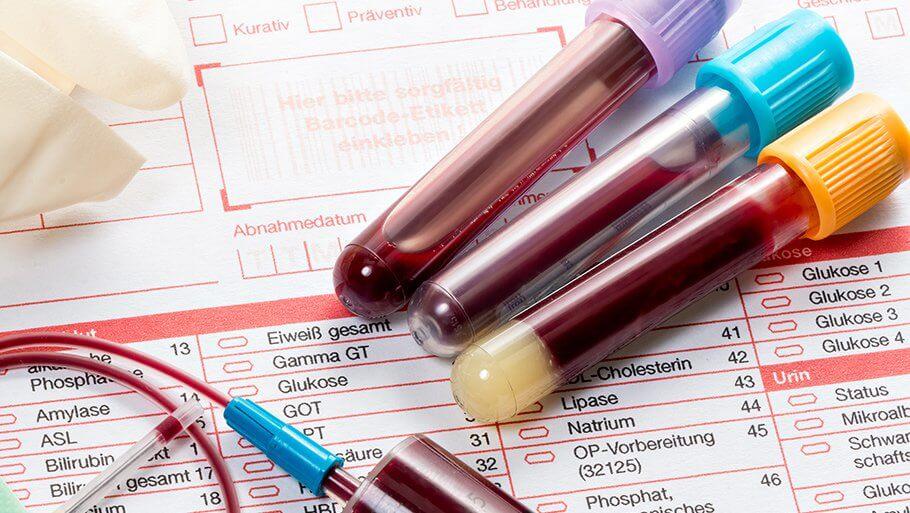 В правительстве не поддержали законопроект о лечении ВИЧ-инфицированных без прописки