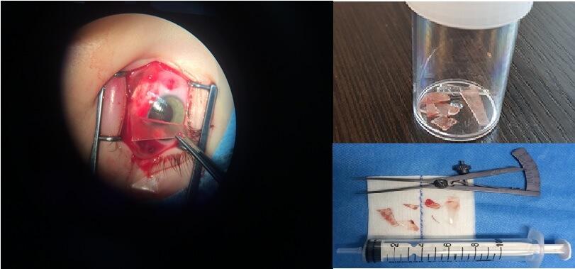 Врачи Морозовской ДГКБ извлекли шесть осколков из глаза ребёнка и сохранили ему зрение