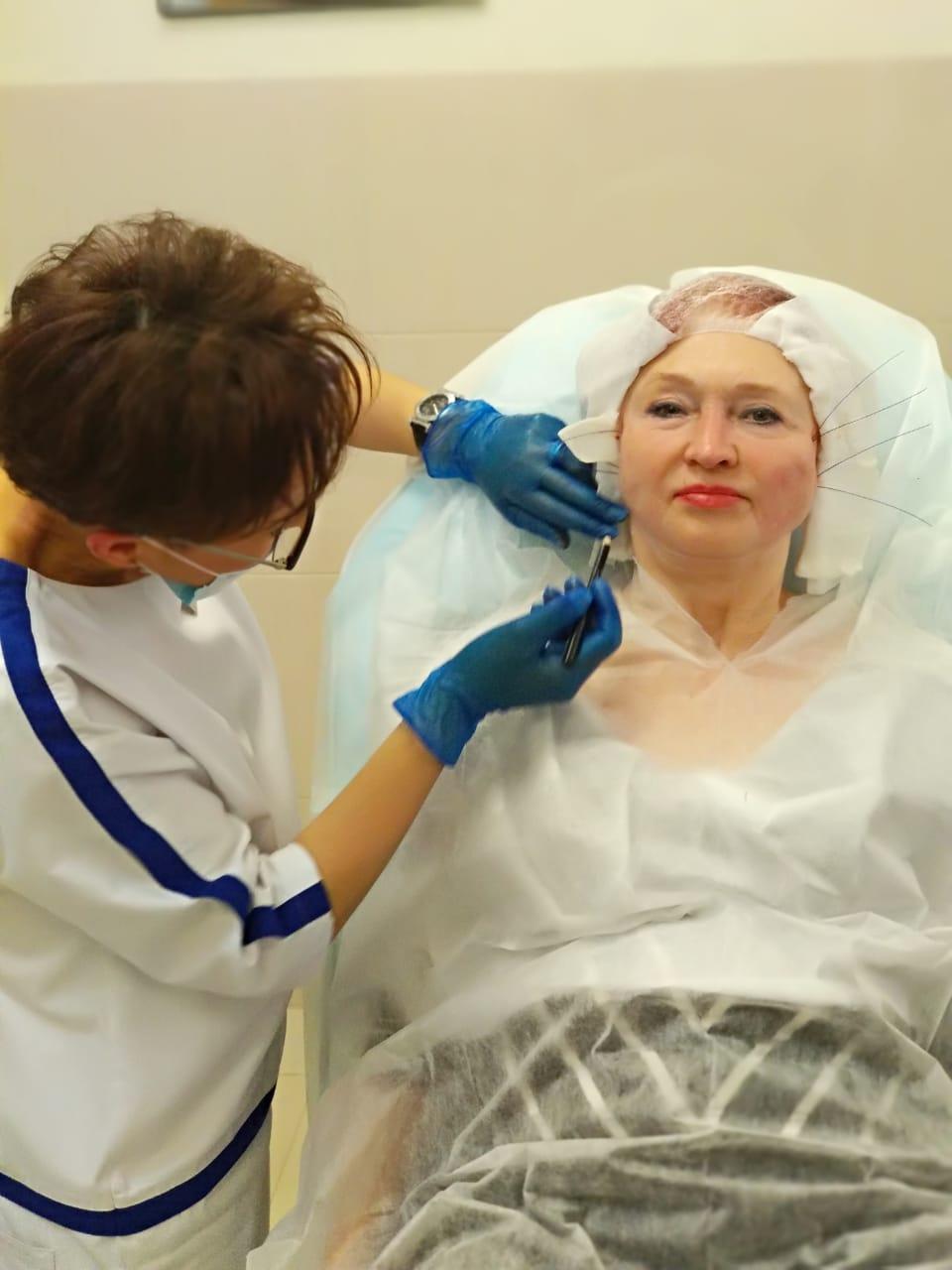 Каждая женщина в любом возрасте мечтает быть красивой и выглядеть привлекательно. Сейчас добиться потрясающих результатов омоложения можно при помощи современных методик. Процедуры омоложения разнообразны, выбор будет зависеть от индивидуальных показаний и желаемых итоговых результатов. Нитевой лифтинг — одна из популярных и востребованных косметологических процедур.