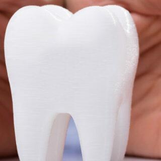 В клинике «Лаки Смайл» рассказали, что такое установка зубного импланта «под ключ»