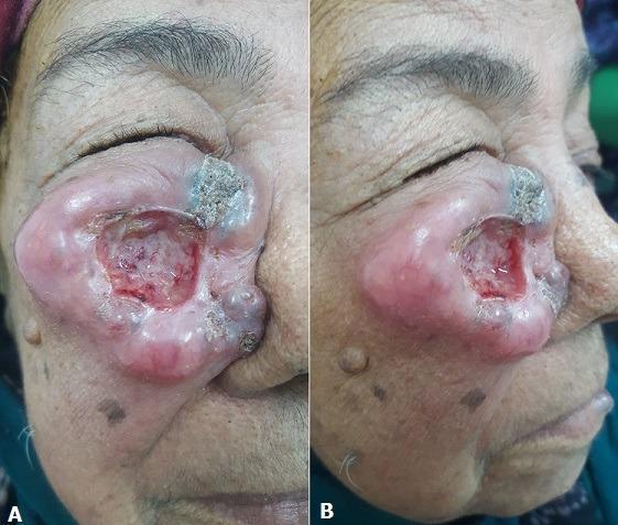 60-летняя женщина с сахарным диабетом 2 типа в анамнезе сообщила о случае отека кожи на правой щеке. Отек развивался в течение 18 месяцев, постепенно увеличиваясь в размерах. При дерматологическом исследовании было выявлено язвенно-почковидное повреждение размером 5 см, округлое, с изъязвленным центром и фибринозным основанием.