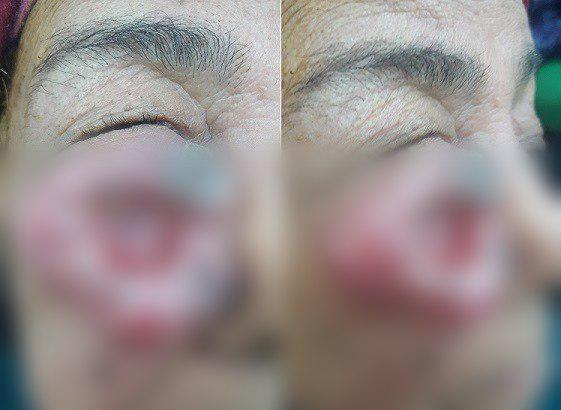 """Фото: пациентка 18 месяцев """"выращивала"""" раковую опухоль на лице"""