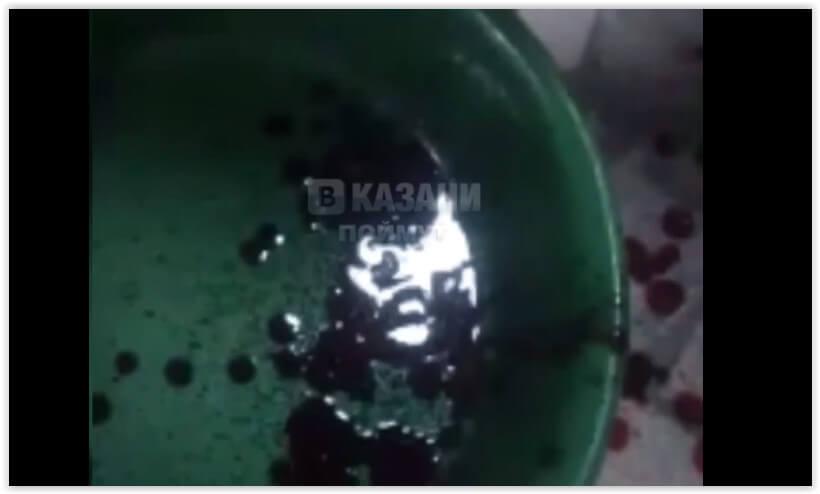 Пьяный татарстанец выставил себя на видео жертвой «безразличных» врачей