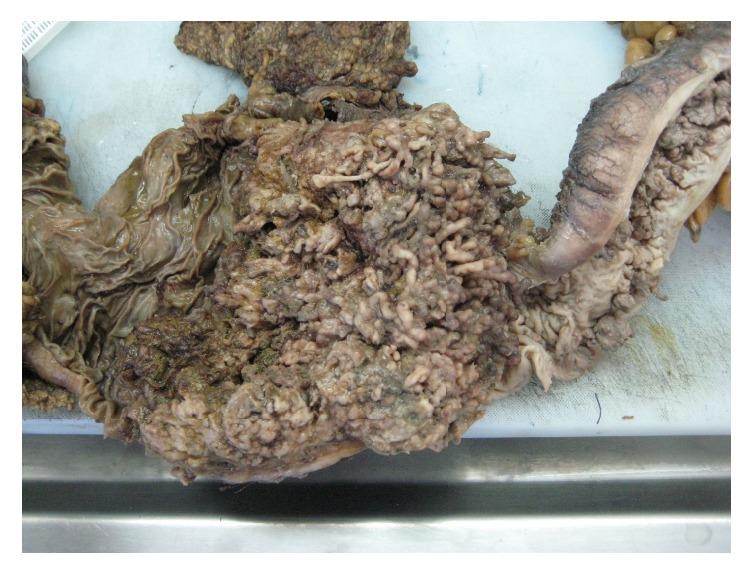 Клинический случай: Обструктивный гигантский воспалительный полипоз – ФОТО