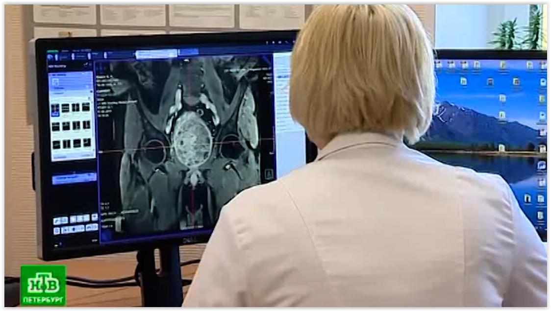 Петербургские хирурги удалили полукилограммовую аденому через половой орган без разрезов