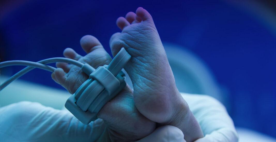Пермские гинекологи – о критериях выхаживания недоношенных младенцев