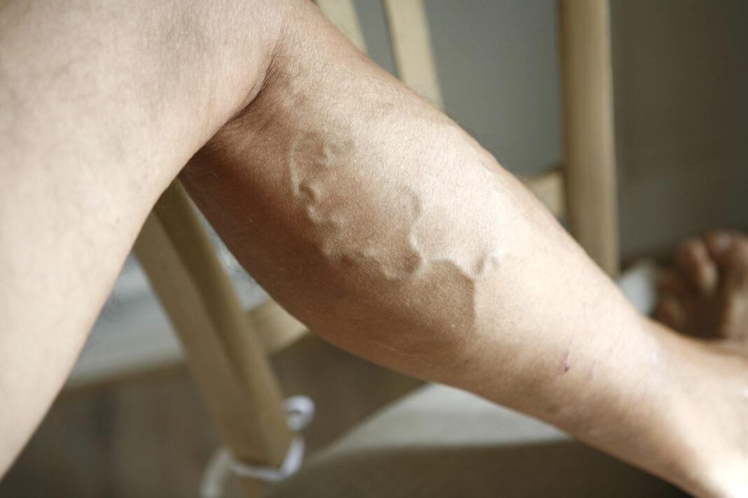 Ноги на стол: как победить варикозное расширение вен?