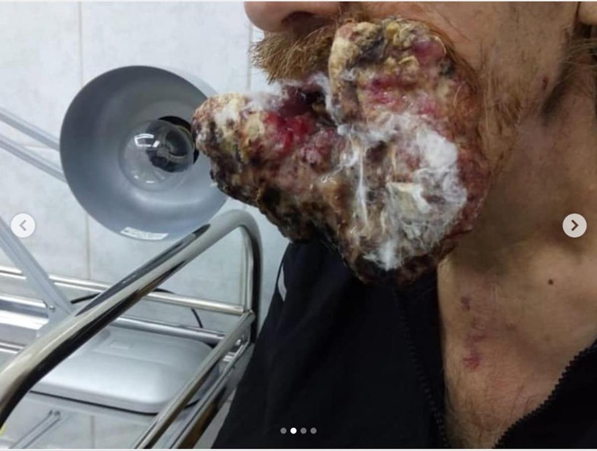 """Кузбассовец обнаружил у себя на губе небольшую опухоль и пришёл к врачам, которые настояли на операции. Но пациент отказался от неё и ушёл в лес, чтобы вылечиться молитвами. Вернулся он к врачам, когда от губы ничего не осталось. Мужчина впервые попал к онкологам два года назад. Тогда опухоль на его губе была на первой стадии и размером всего 1 см. По утверждениям врачей, образование можно было удалить. Но пациент решил, что """"само рассосется"""" и пошел молиться в тайгу."""