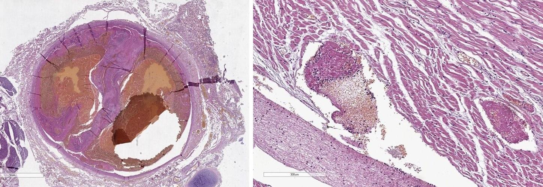 «COVID-19 стоит расценивать как болезнь, которая приводит к повышенному тромбообразованию»
