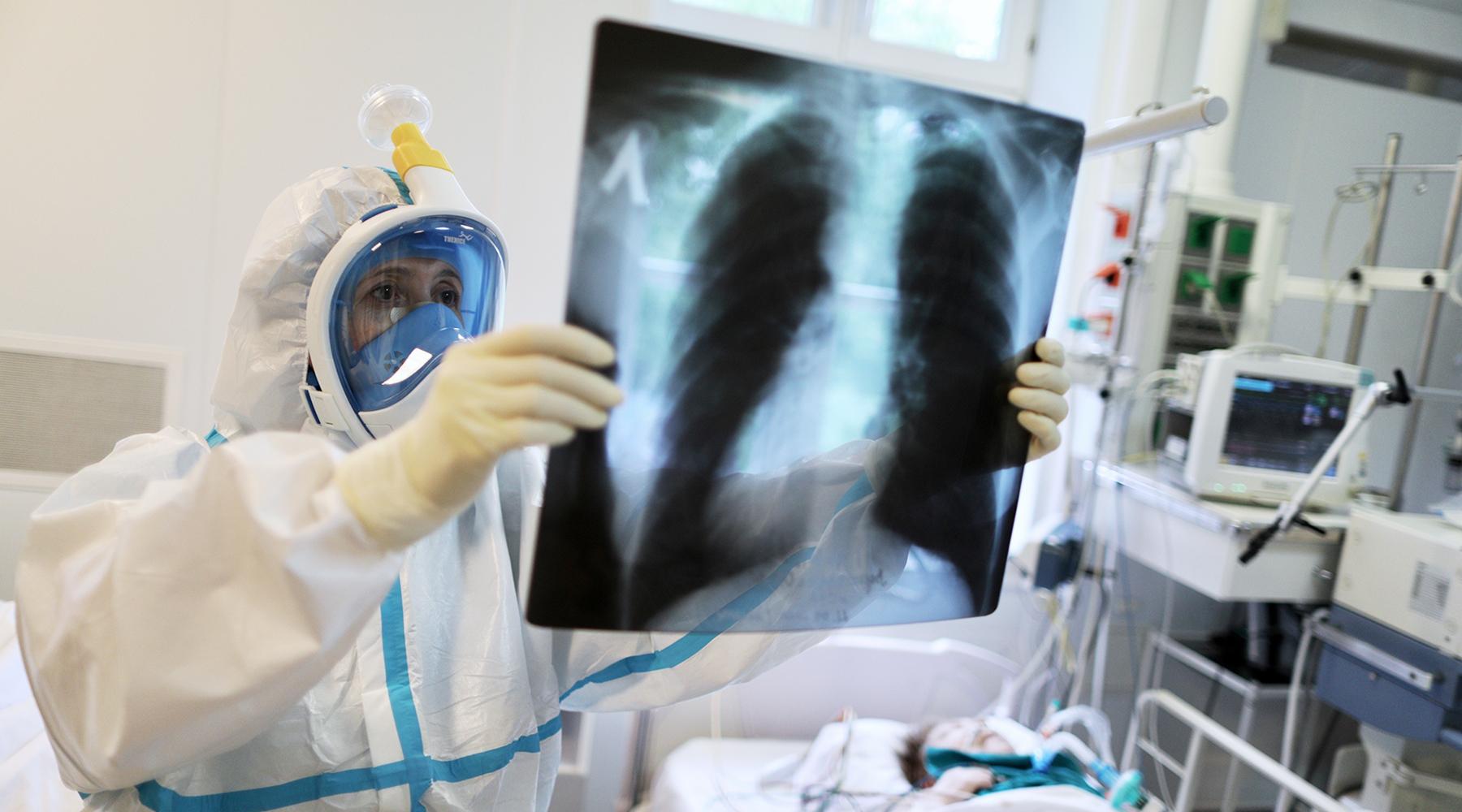 «На пике заболеваемости мы имеем «военно-полевую хирургию», и потери гораздо выше»