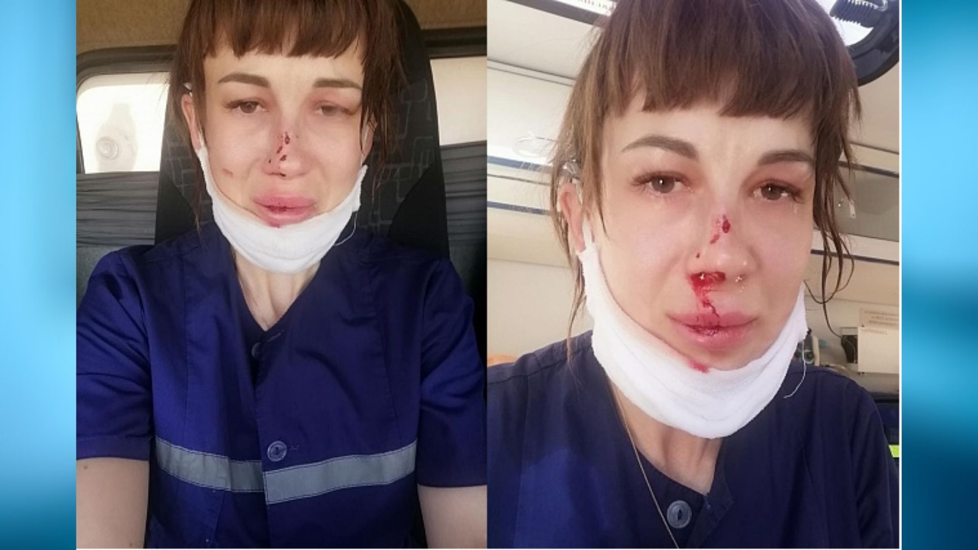 Саратовец избил врача «скорой» за просьбу показать документы
