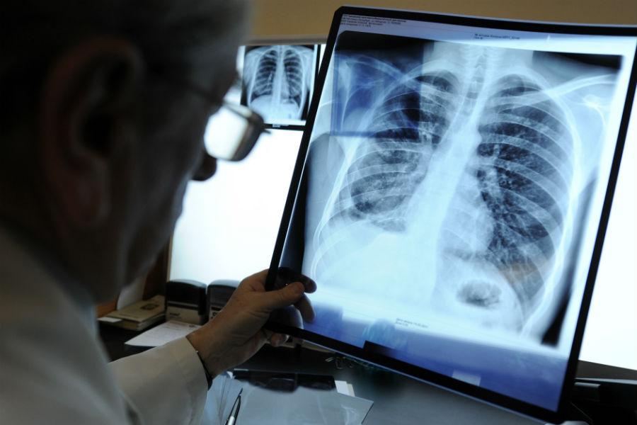 Фтизиатры предупредили о всплеске заболеваемости туберкулёзом в конце 2020 года из-за пандемии
