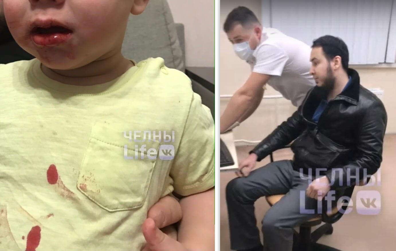 «В верхней одежде и грязными руками»: Родители пациента пожаловались на врача