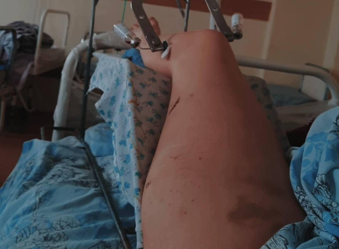 В Ставропольском крае ночью с 10 на 11 марта произошла авария в Ессентуках. Машина «скорой» припарковалась у обочины с включёнными маячками. 22-летняя фельдшер Алина Афанасиади оказывала помощь пациенту на улице. Мимо ехал по городу водитель ВАЗ. Он превысил скорость, не справился с управлением, сбил медработника и въехал в машину скорой помощи. Вбольницу также доставлены 29-летний водитель и18-летний пассажир автомобиля ВАЗ. Уводителя взяли анализ наустановление алкоголя вкрови.