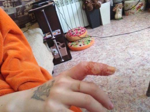 Жительница Кузбасса обвинила врача областной детской больницы в причинении травмы своей дочери. По мнению женщины, хирург обработал рану на пальце руки ребёнка неразведённым раствором и это спровоцировало ожог. В медучреждении отметили, что помощь была оказана правильно, но на препарат возможны аллергические реакции. О ситуации мать ребёнка написала в паблике «Инцидент Кузбасс».